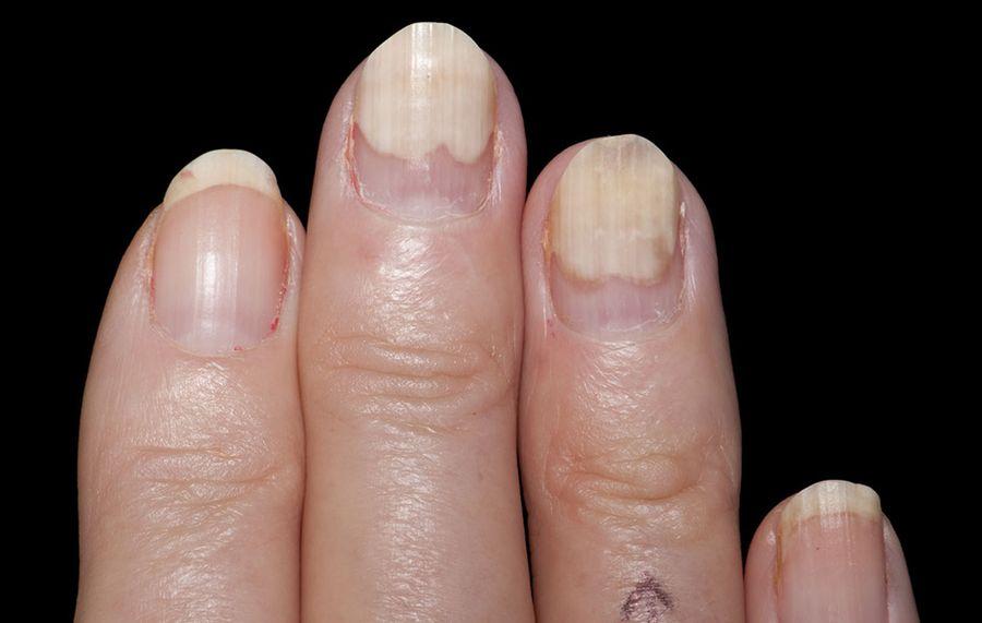 Onycholiza paznokcie